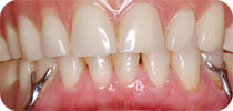 Complete upper dentures + lower partial