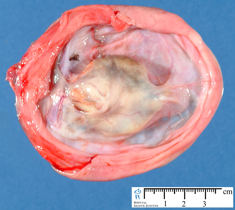 Mature teratoma or a dermoid cyst