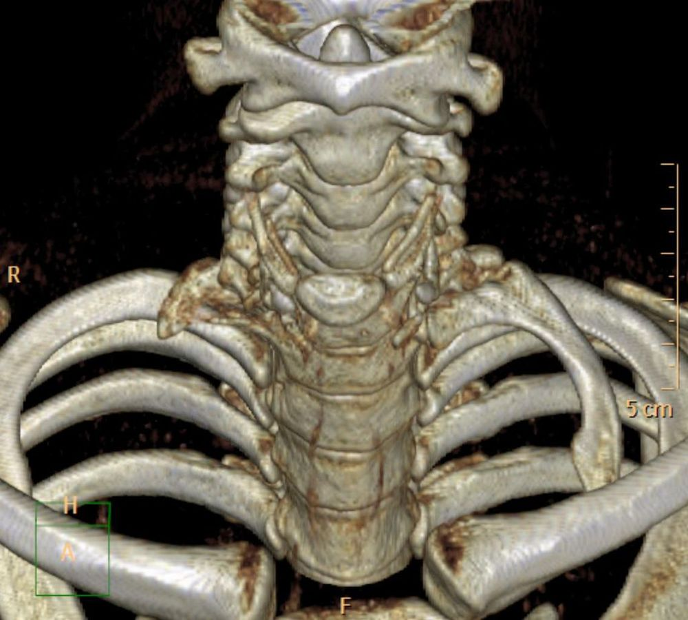 3-D CT rendering of a left C7 cervical rib
