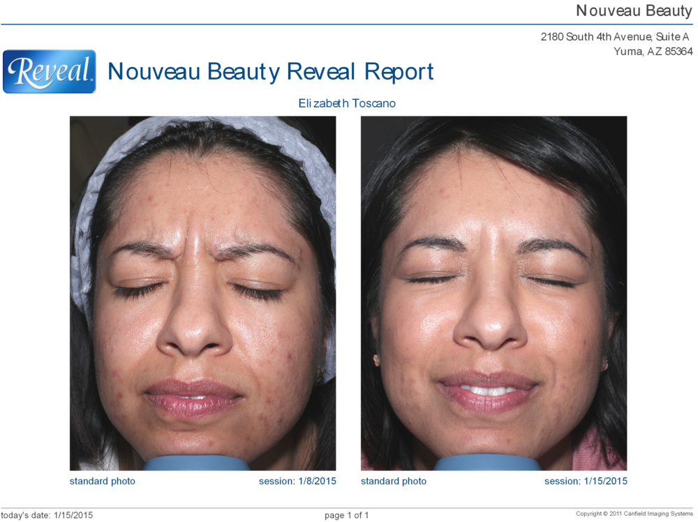 Botox Cosmetic effects after 3- days. Less mobility in the frown area is noticeable.