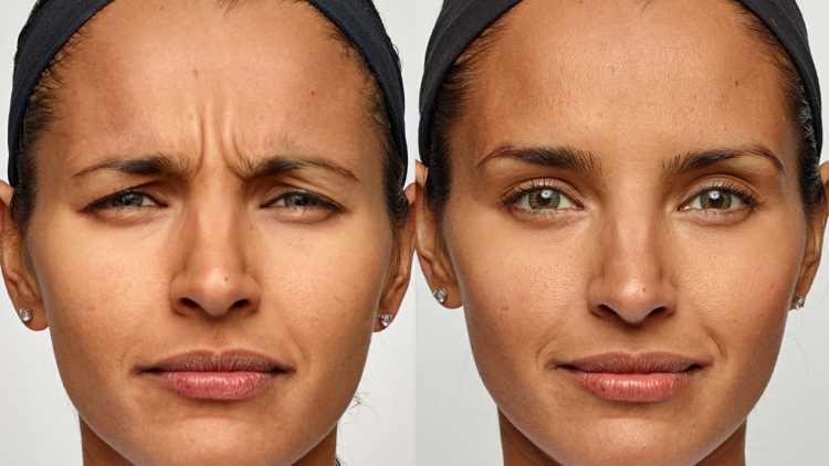 Botox Cosmetic and Dysport