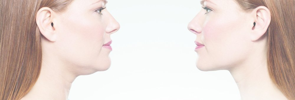 Kybella for Double Chin -
