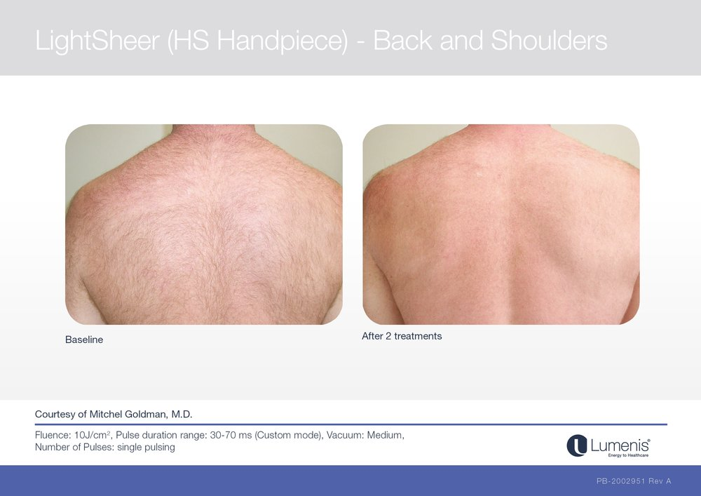 Picture of laser hair removal for back