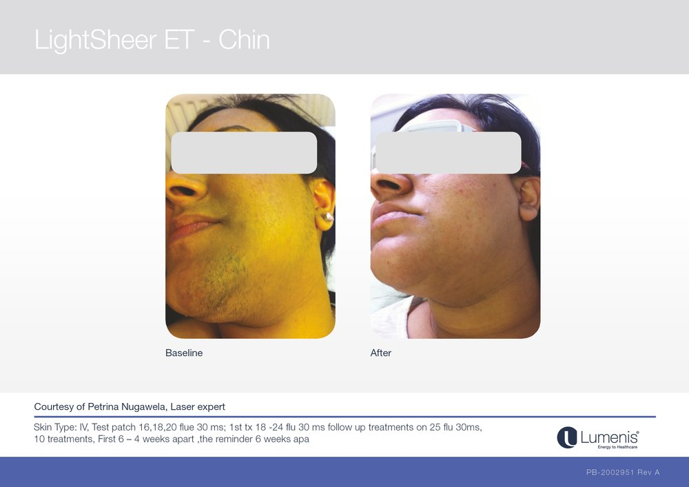 Picture of laser hair removal of chin