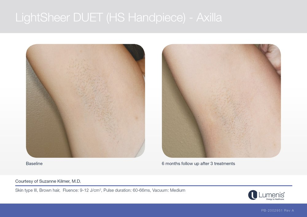 Picture of laser hair removal of underarms