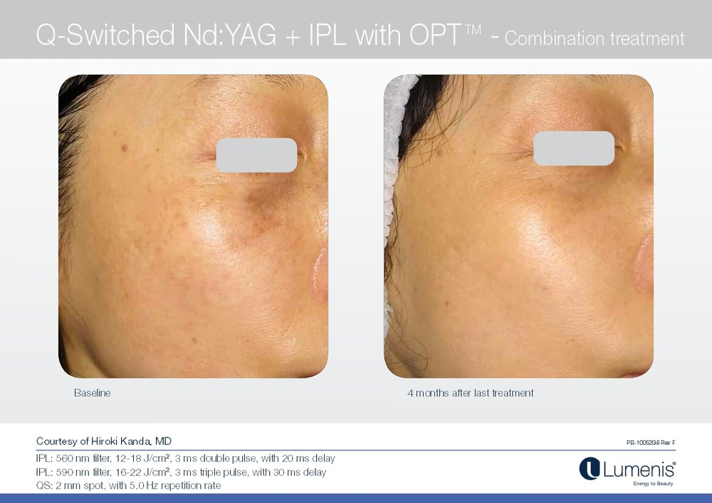 Picture of IPL & Photofacial dark spot removal on the cheek.