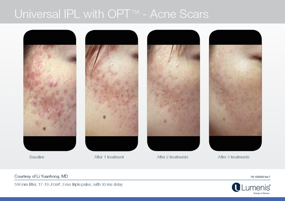 Picture of active acne reduction on face.