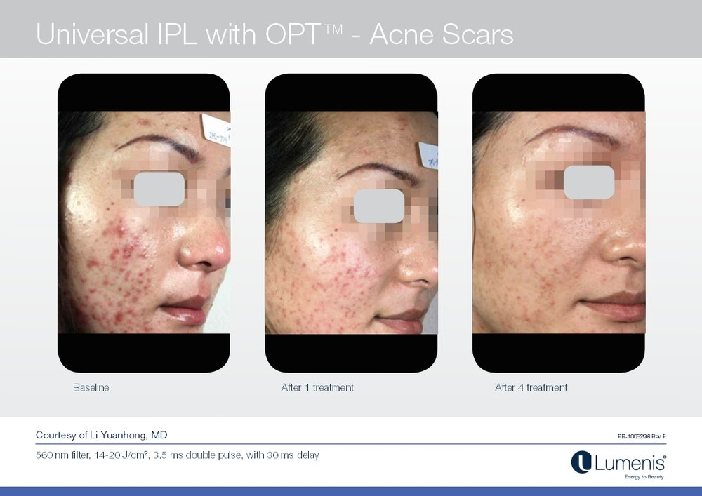 Picture of active acne reduction with IPL and photofacial.