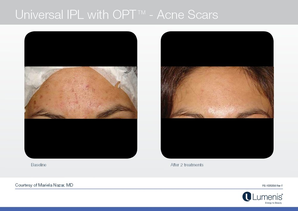 Picture of acne scar reduction.