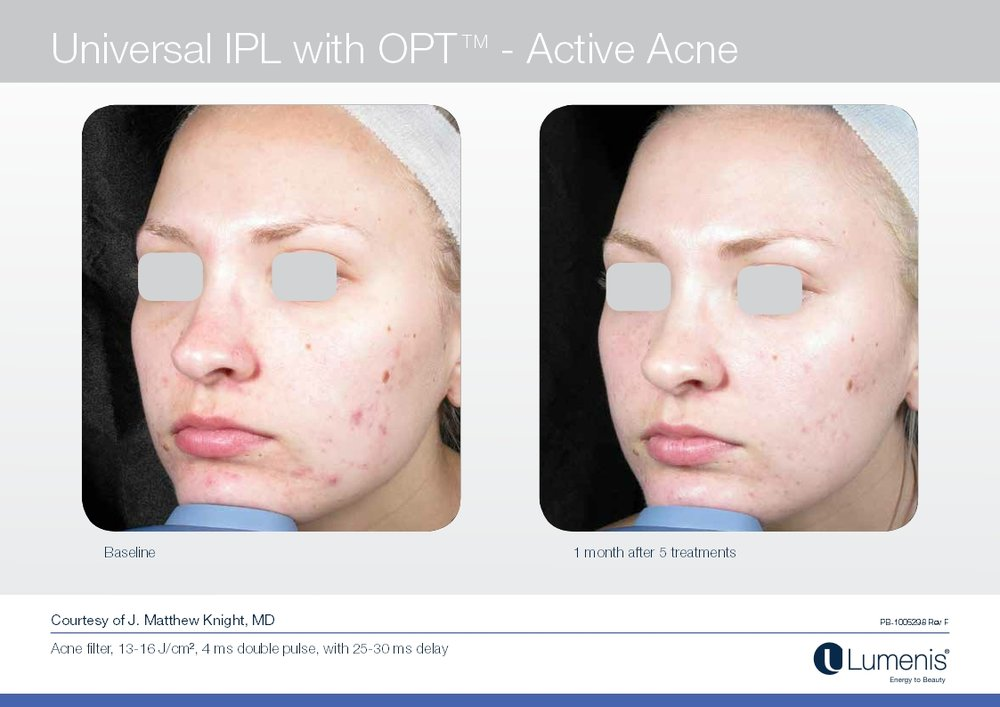 Picture of acne reduction with IPL and photofacial