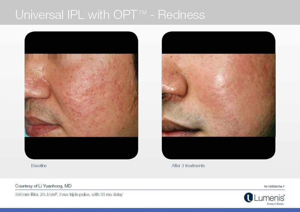 Picture of Redness Reduction with IPL and Photofacial