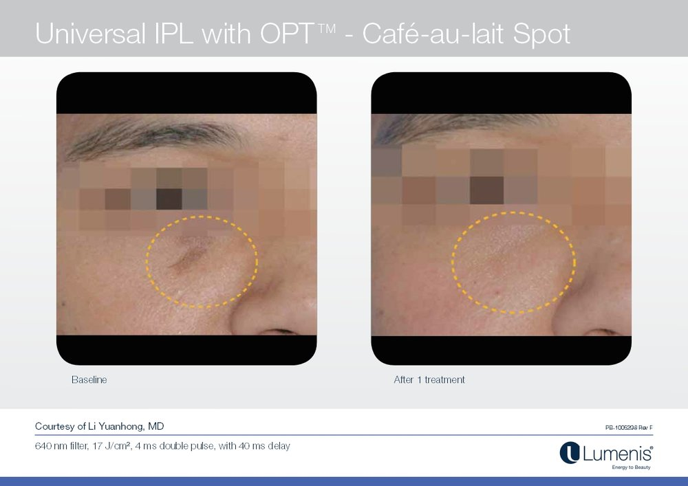 Picture of dark spot reduction with IPL and Photofacial