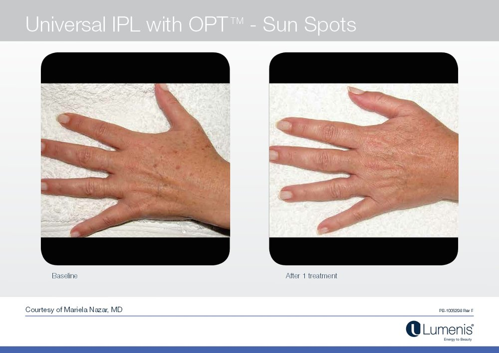 Picture of dark spot reduction on hands with IPL.