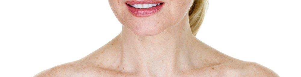 Laser: IPL for Sun Damage & Skin Tone -