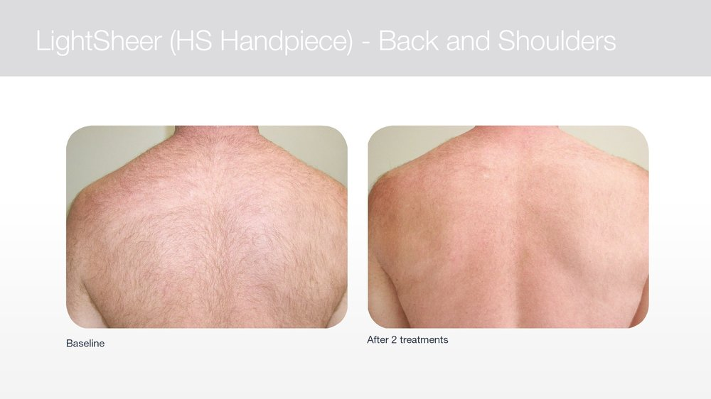 Laser hair removal on back and shoulders