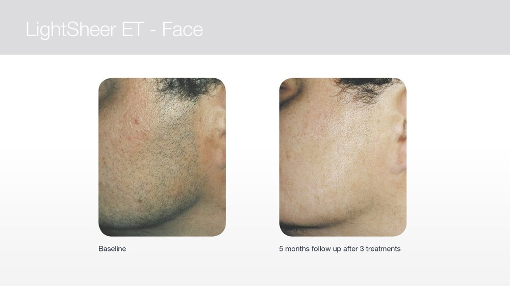 Laser hair removal for men's face