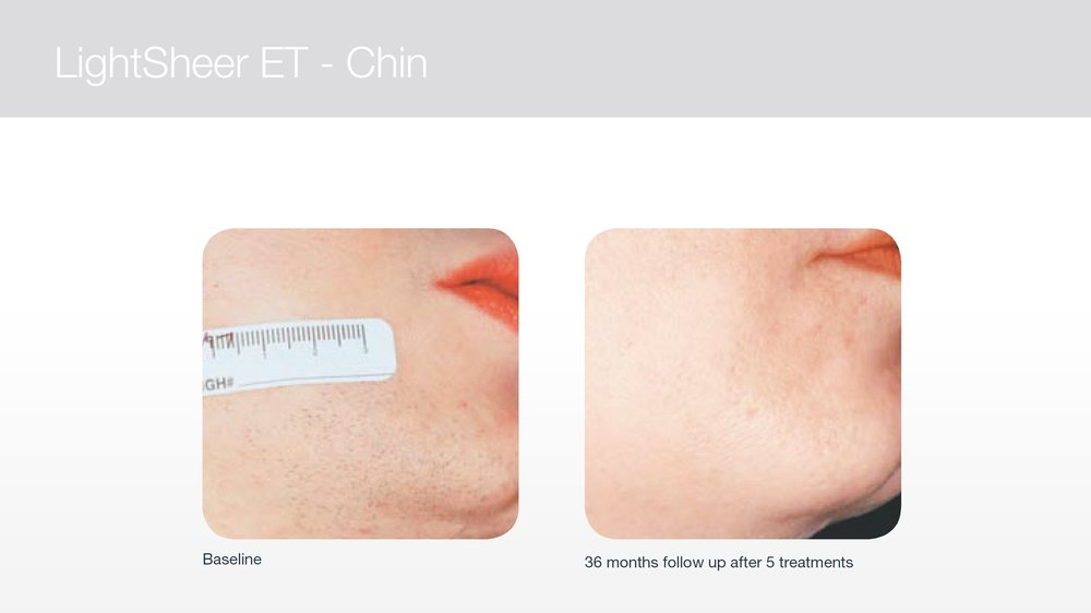 Laser hair removal for chin