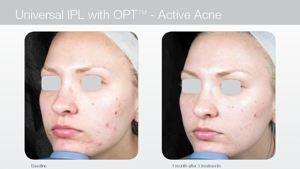 Acne treatment with laser