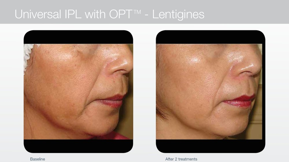 Laser treatments for sun spots and lentigines