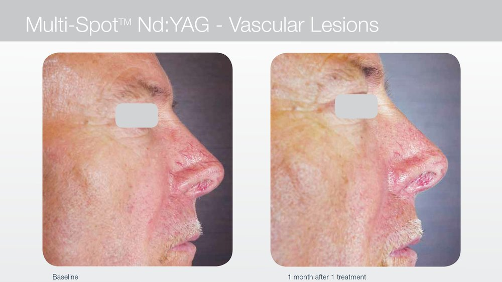 Laser for vascular lesions and broken capillaries