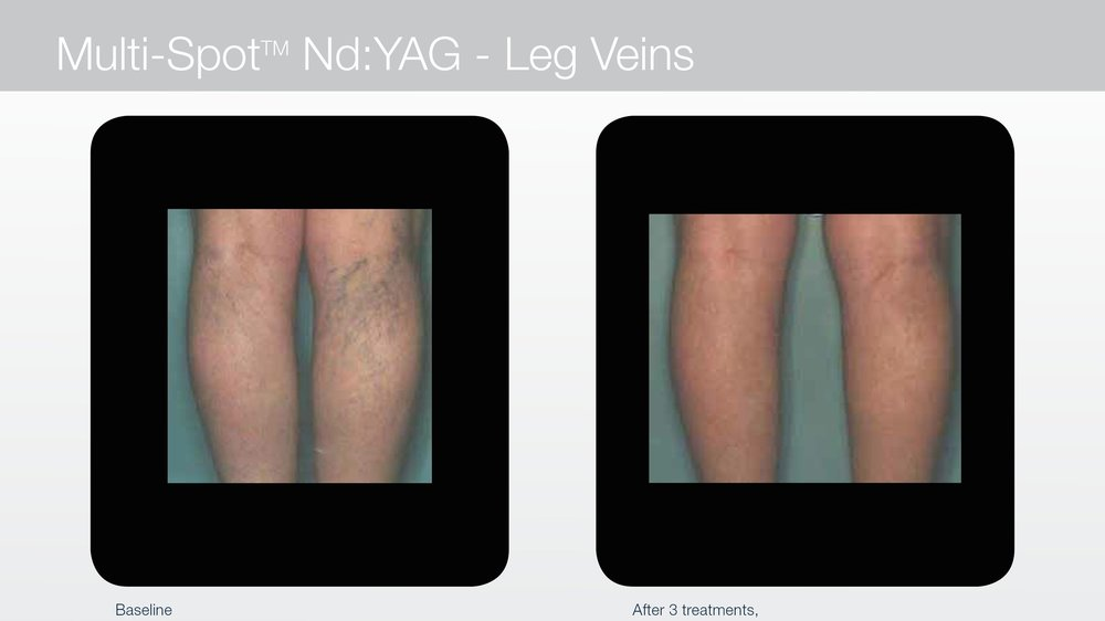 Laser treatment for spider veins on legs