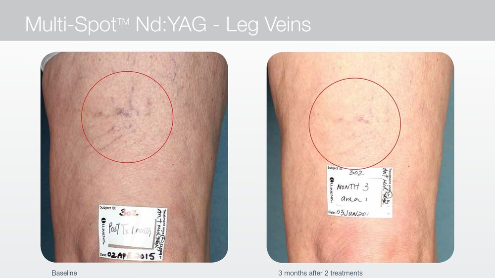 Laser treatment for spider veins on back of leg