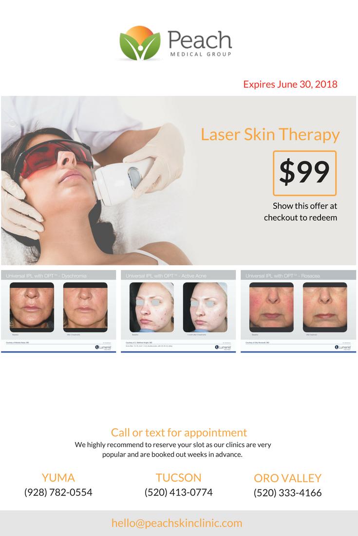 IPL/Photofacial New Patient Offer