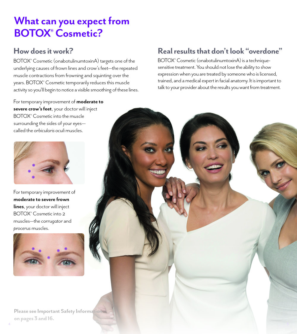 What can you expect from Botox.jpg