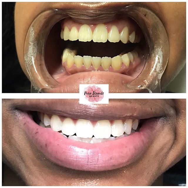 Results! Come experience a smile transformation with our amazing whitening system. Before and after results. This Guest went about 7-8 shades whiter in 1 session ❤️ Call us ☎️ 713)429-9582 or schedule with the link in our Bio