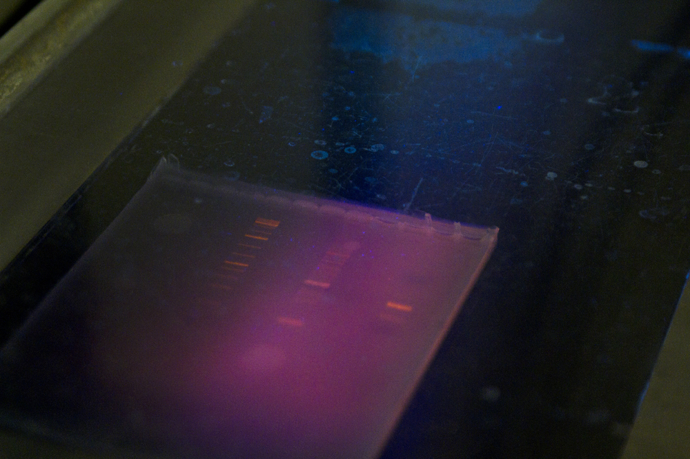 Cut up DNA, pieces are separated by an electrical field.
