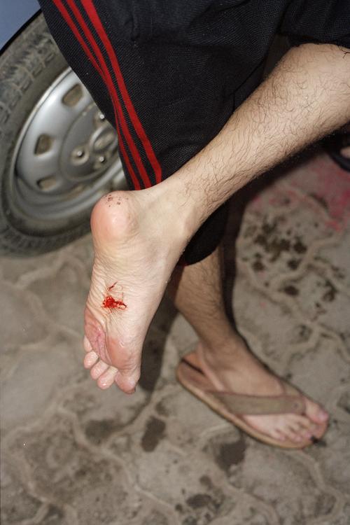 foot_small.jpg