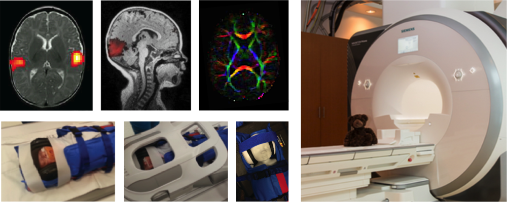 Upper row: auditory activation in a 3-month old; visual resting state component in a 9-month old and DTI in a 3-month old scanned on the 3T Siemens Prisma at the Robarts Research Institute (right). Bottom row: MRI setup used for neonates at Children's Hospital, LHSC.