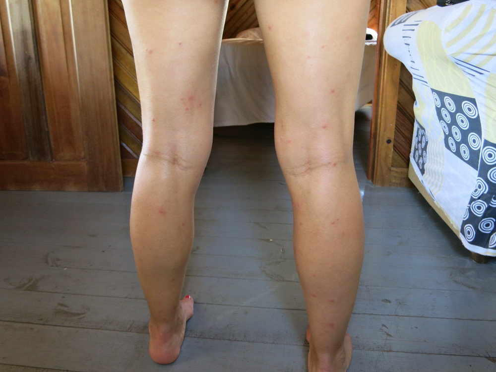60 bug bites on one leg... OUCH!