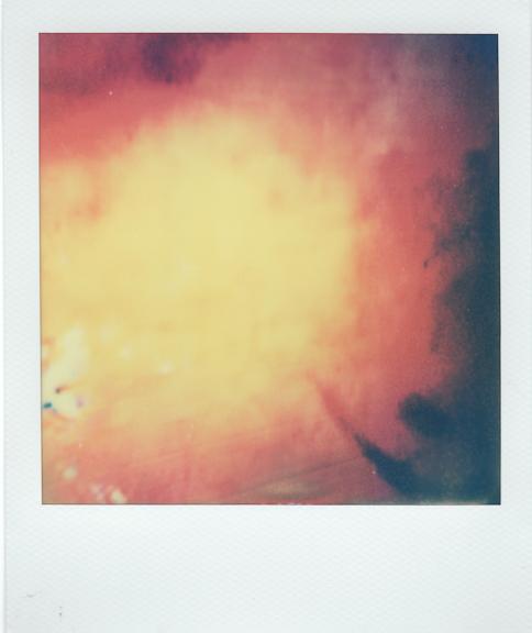 bruise-10 copy.jpg