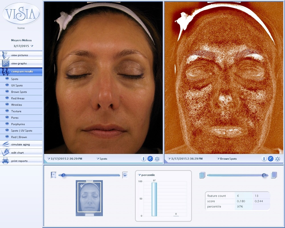 Visia Complexion skin analysis performed at the Koan Center show the improvement of your skin after treatments.