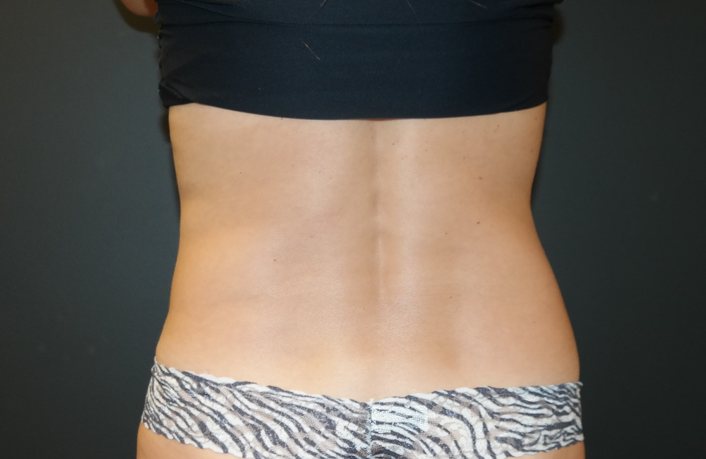 SculpSure after one treatment