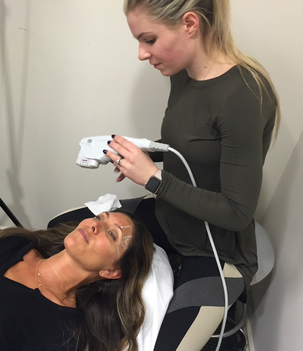 Chelsea Hagopian, MSN, AGACNP-BC is Dr. Jaime Schwartz's Nurse Practitioner. Here, she is performing Ultherapy on me around and under the eye area. Yes it is painful but applying anesthetic cream one hour before makes is bearable.