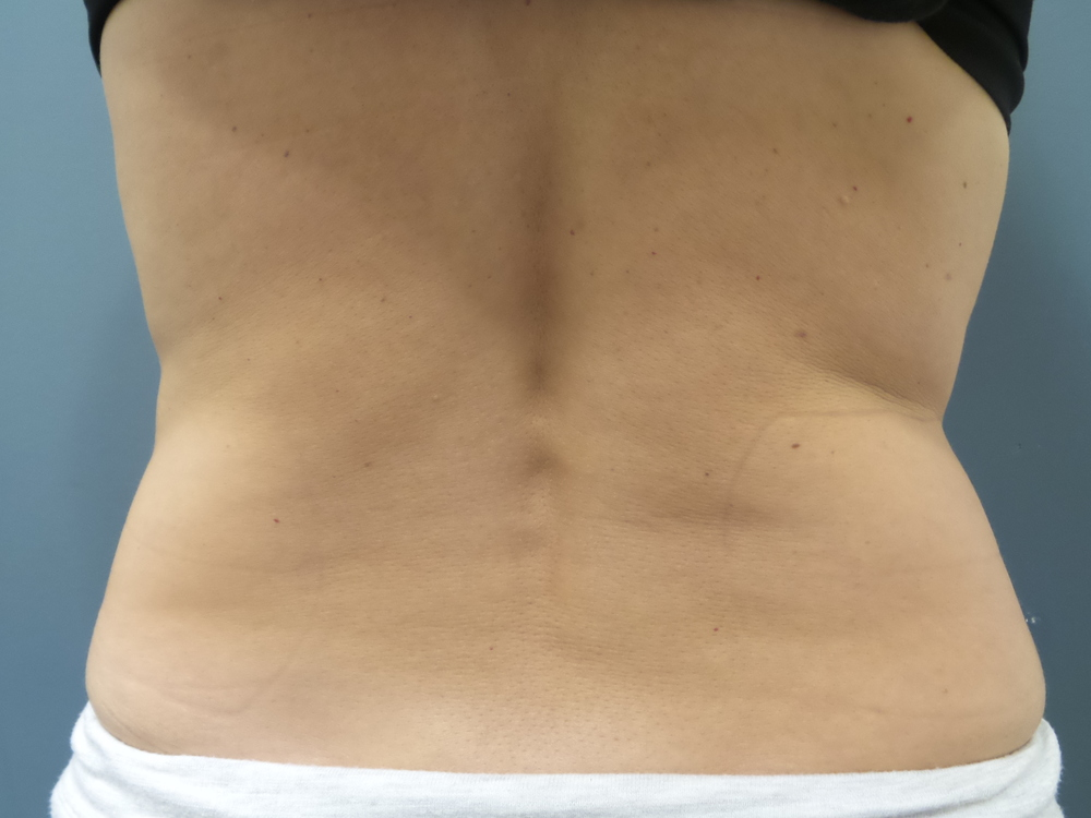 SculpSure before