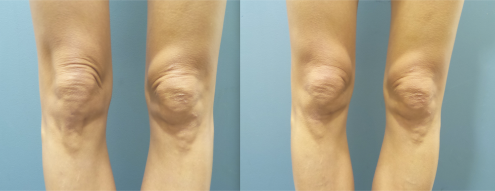 Patient treated sagging skin over knees.