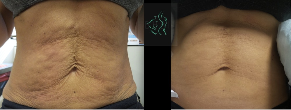 Patient who had ThermiSmooth on the tummy! Big results here.