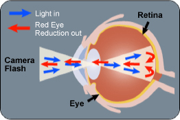 lighteye red eye
