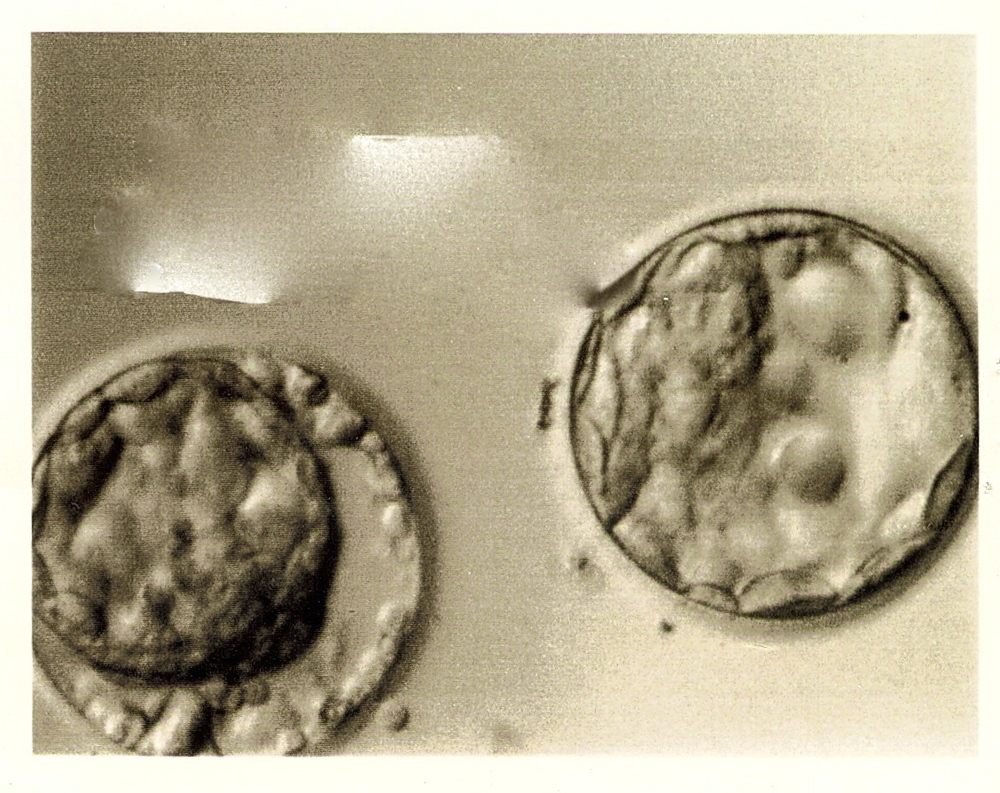 Our first two embryos many moons ago.........