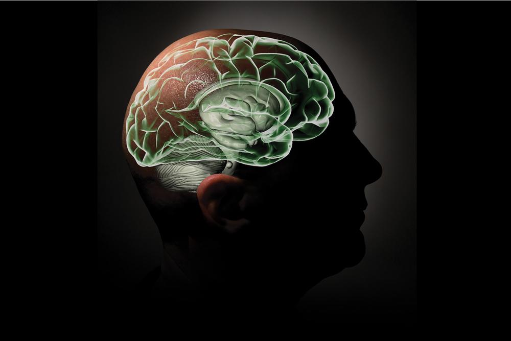 brain_shifts_med.jpg
