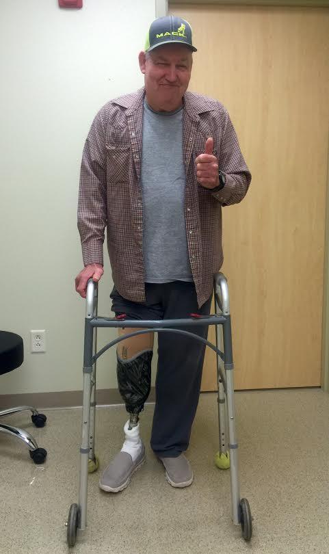 Custom Knee Prosthesis