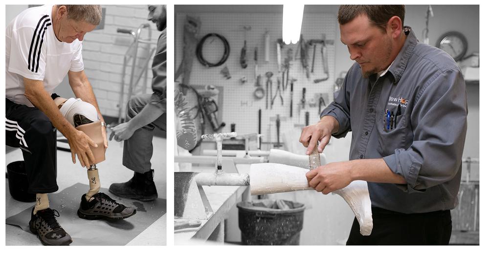 new-hope-prosthetics-and-orthotics