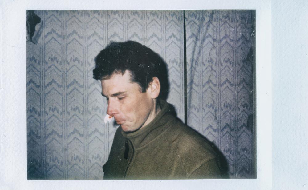 Keith having a nosebleed.