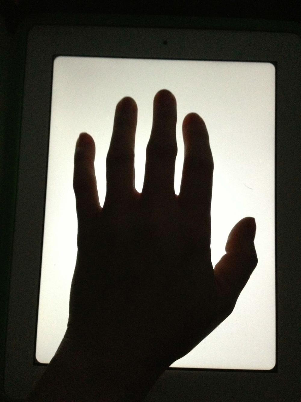 ankylosing_sponydlitis_swollen_fingers