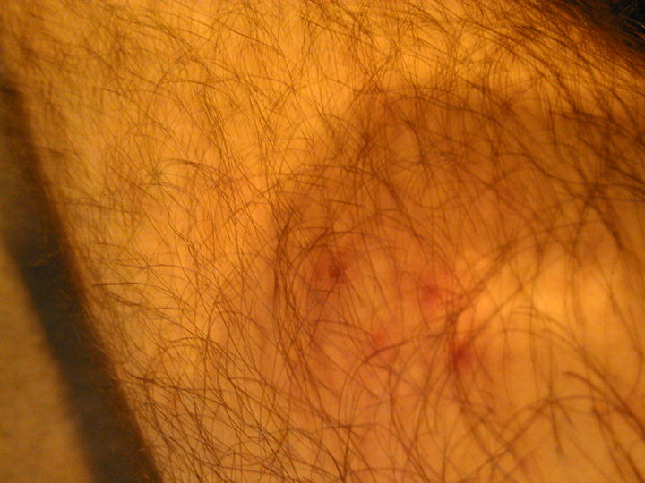 An image of the four yellow jacket stings on my knee. This yellow jacket may have been an artist in another life. It made a perfect diamond.