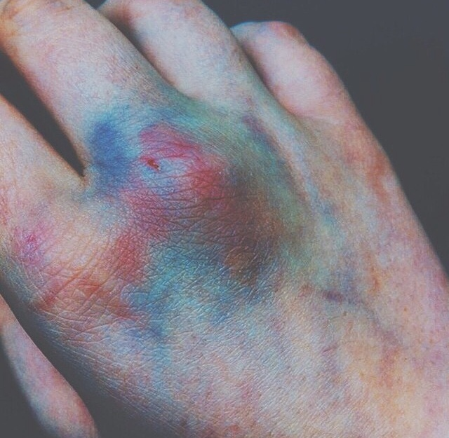 Rainbow bruises.