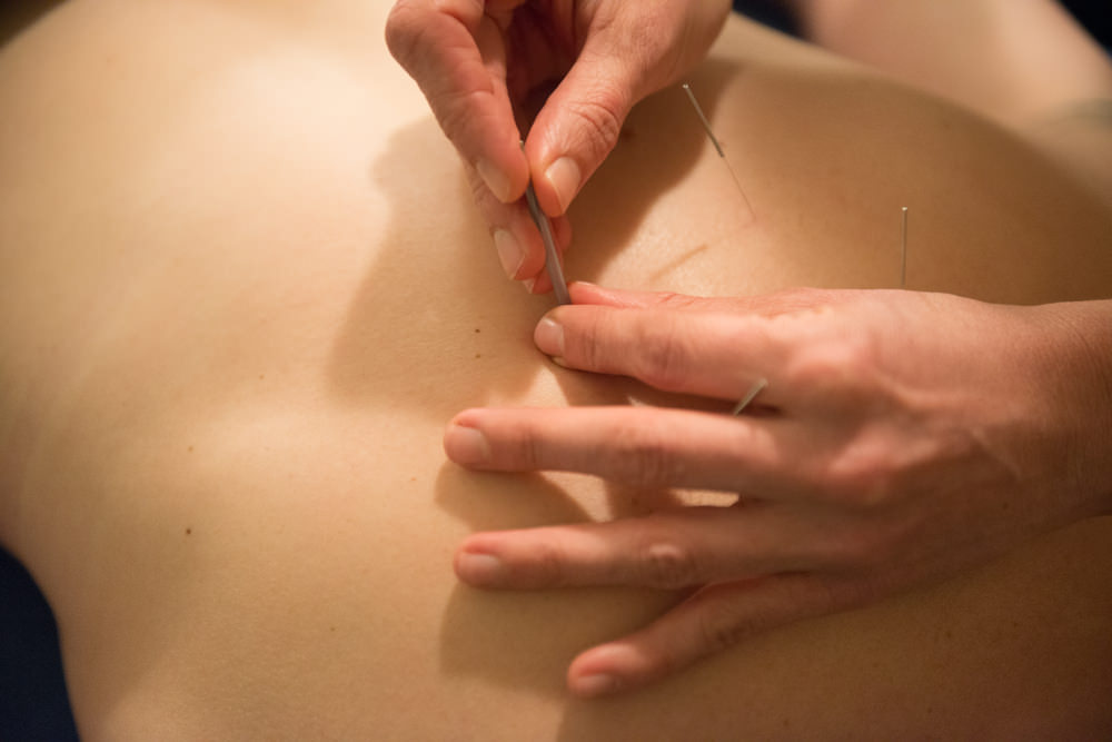 Copy of Subtle adjustments of the acupuncture needles